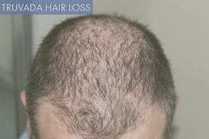 truvada and hair loss